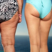 This picture tells what is cellulite and how it looks like