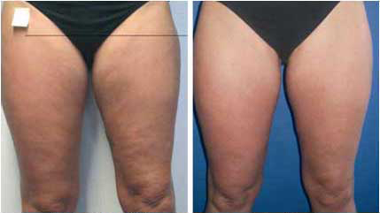Acoustic wave therapy for cellulite before and after