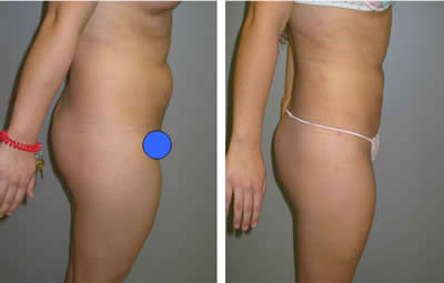 Liposuction cellulite treatment