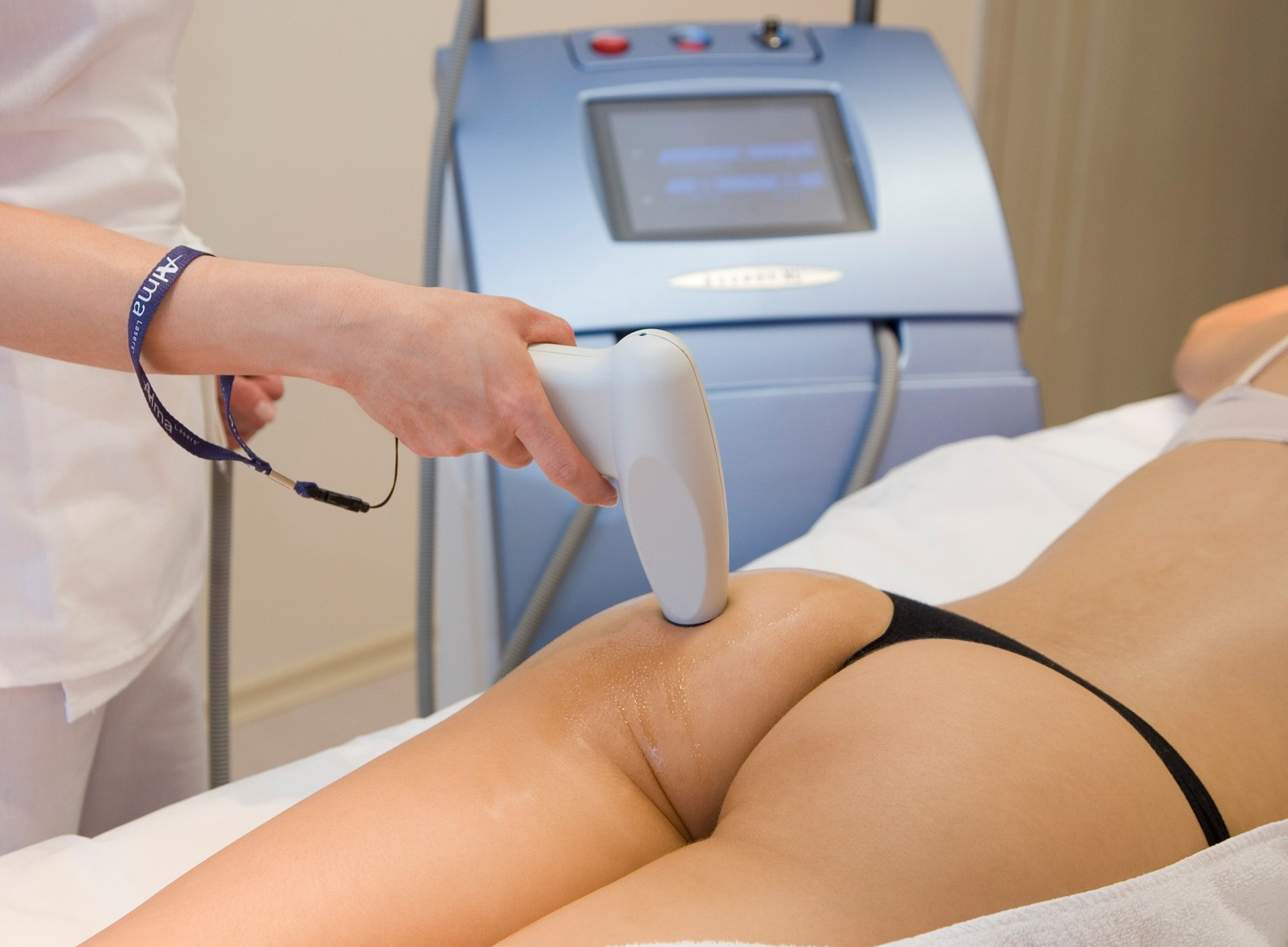 Accent XL cellulite treatment