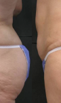 Accent XL – Laser cellulite removal treatment