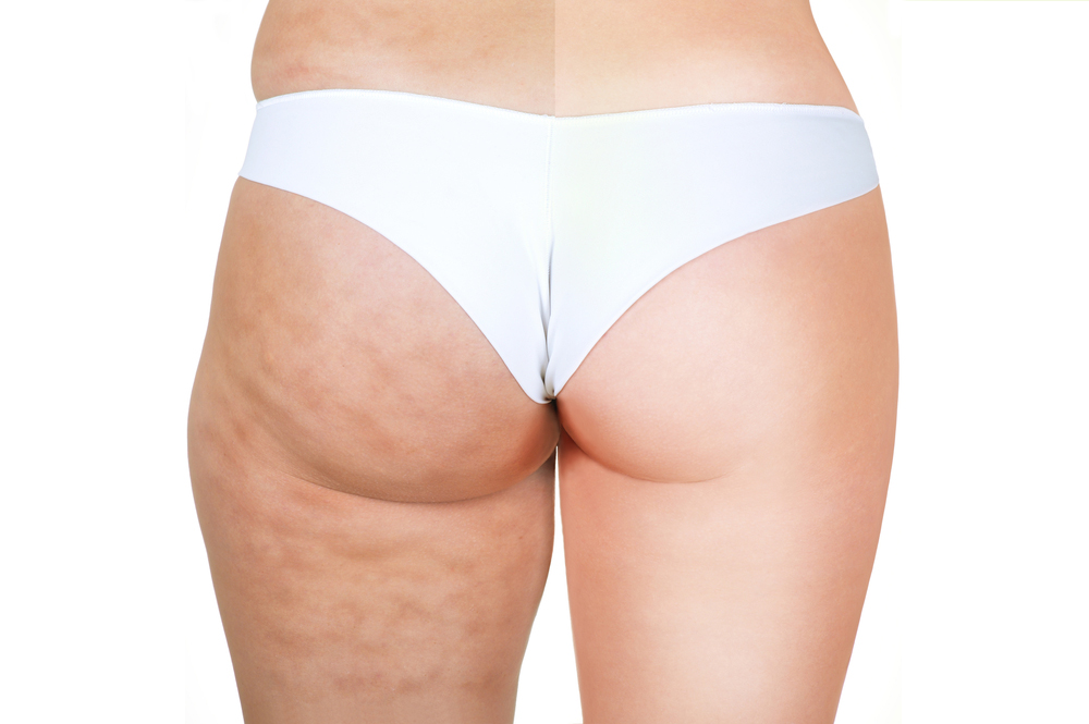 Prevent Cellulite With These 10 Tips