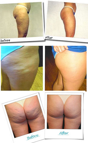 Before and after Revitol cellulite cream