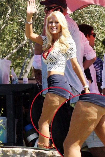 Heidi Montag - a young celebrity with cellulite