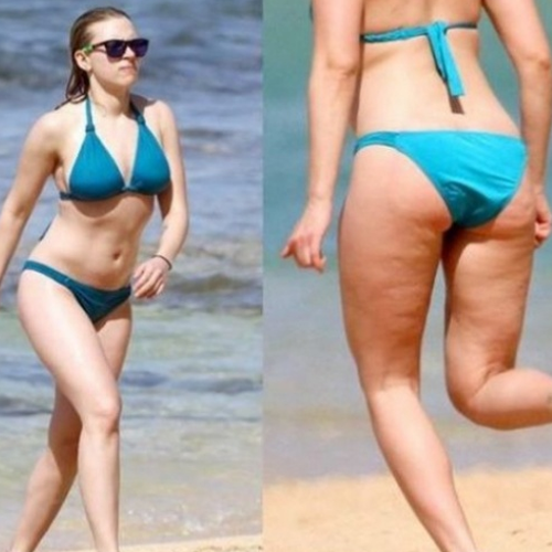 Scarlett Johansson - hot celebrity with cellulite