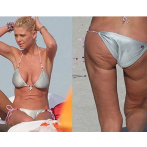 40 Celebrities with cellulite  | Pictures |