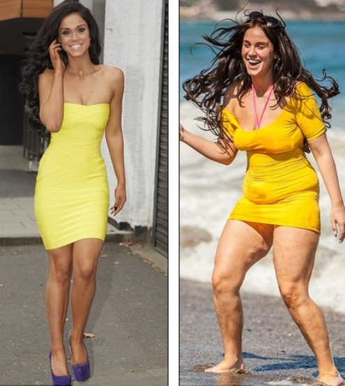 Vicky Pattison Cellulite before after