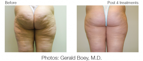 VelaShape before and- after buttocks
