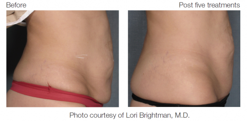 VelaShape before and after stomach