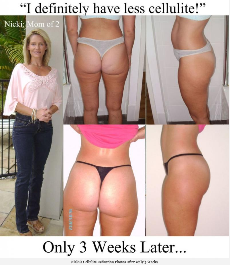 truth about cellulite testimonial